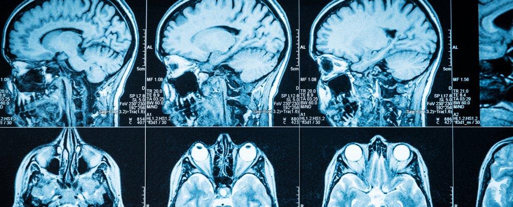 4 Neurological Symptoms You Should Never Choose to Ignore