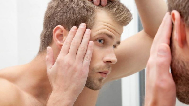 Post-Covid Hair Loss – Can the best shampoo for hair growth reverse it?